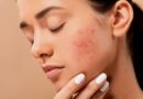 Eliminate acne and facial scars - Beauty and Health - Face and Skin Care - Dorian's Secrets: The Eternal Youth Magazine!