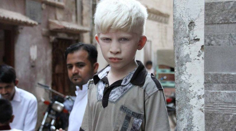 International Albinism Awareness Day - June 13 - A Day as Today - Events and Curiosities - Dorian's Secrets: The Eternal Youth Magazine